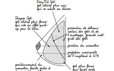Prothèses mammaires – Un nouvel implant mammaire pour traiter les poitrines tombantes