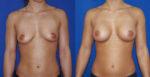 Implants anatomiques derrière le muscle par l'aisselle