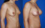 Implants anatomiques recouverts de mousse de polyurethane 330 cc
