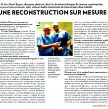 Informations sur la chirurgie reconstructive vaginale en plastique