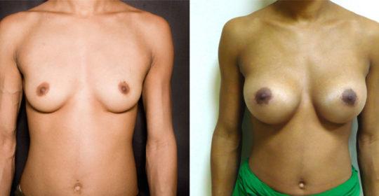 implant mammaire rond 350 cc haute projection résultat FACE