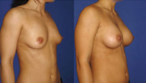 augmentation-mammaire-10 profil