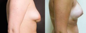 augmentation-mammaire-19