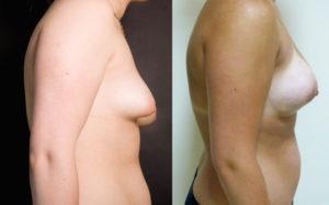 augmentation-mammaire-19-seins-tubereux profil