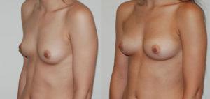 augmentation-mammaire-22-lipofilling 3/4