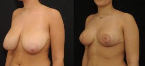 photo-reduction-mammaire-02 vue 3/4