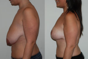 photo-reduction-mammaire-04 profil