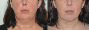liposuccion-plasticiens-paris-2 face