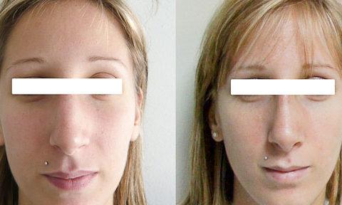 Résultat rhinoplastie 2 voie ouverte vue de Face