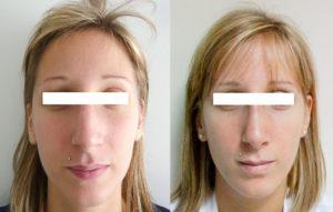 rhinoplastie-plasticiens-paris-1 face