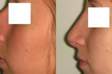 Résultat rhinoplastie 2 voie ouverte vue de Profil