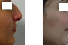 Résultat rhinoplastie 1 voie fermée vue de Profil