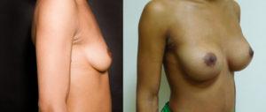 augmentation-mammaire-06