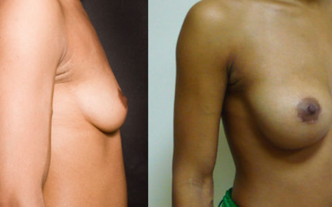 implant mammaire rond 350 cc haute projection résultat PROFIL