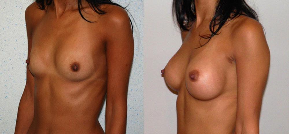 implant mammaire rond 335 cc haute projection résultat PROFIL