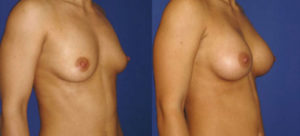 augmentation-mammaire-10
