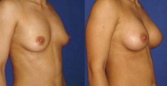 implant mammaire anatomique 320 cc haute projection résultat PROFIL