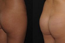 Implants fessiers 360 cc résultats vue 3/4