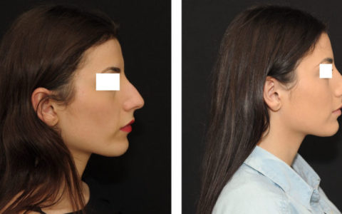 Résultat rhinoplastie 7 ultrasonique vue de profil
