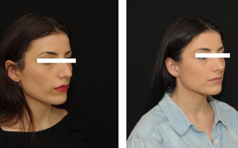 Résultat rhinoplastie 7 ultrasonique vue de 3/4
