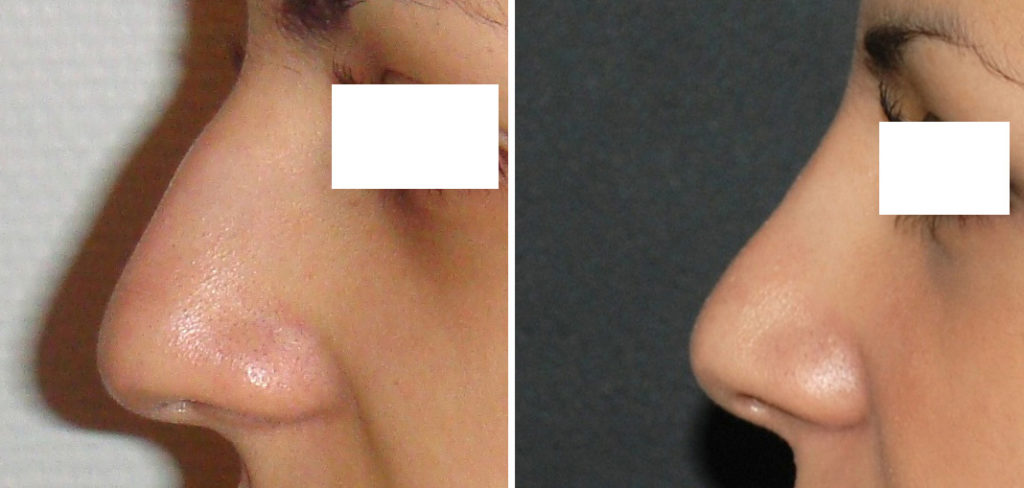 Résultat rhinoplastie 5 voie fermée vue de profil