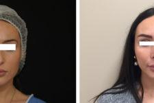Résultat rhinoplastie 8 ultrasonique vue de Face
