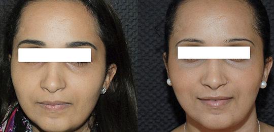 Résultat rhinoplastie 6 voie fermée vue de face