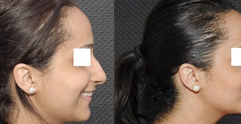 Résultat rhinoplastie 6 voie fermée vue de profil