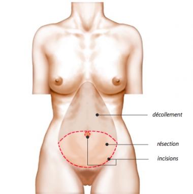 Abdominoplastie - Plastie Abdominale Classique