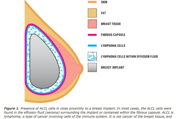 Prothèse mammaire – Lymphome et prothèses mammaires