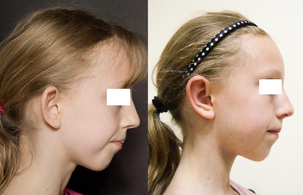chirurgie des oreilles d coll es otoplastie paris docteurs benjoar et berdah. Black Bedroom Furniture Sets. Home Design Ideas