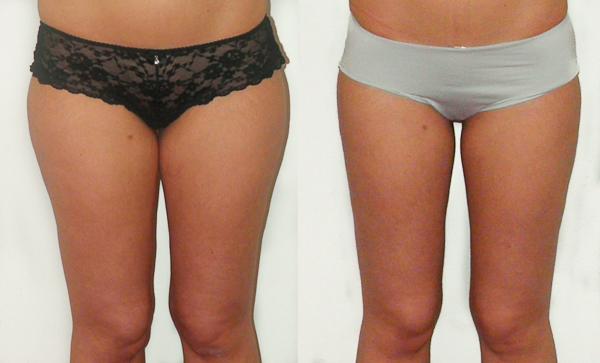 Body Shape Surgery - Liposuction - Plasticiens Paris