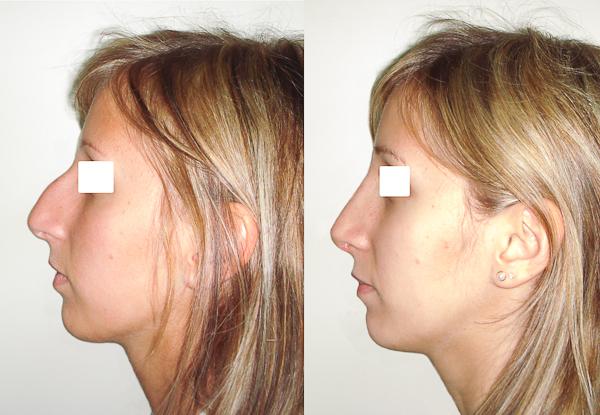 rhinoplastie paris chirurgie esth tique du nez. Black Bedroom Furniture Sets. Home Design Ideas