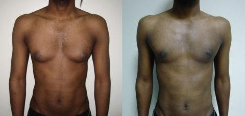 Gynécomastie masculine