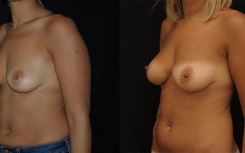 Lipofilling des seins avec correction d'asymétrie. Vue de profil