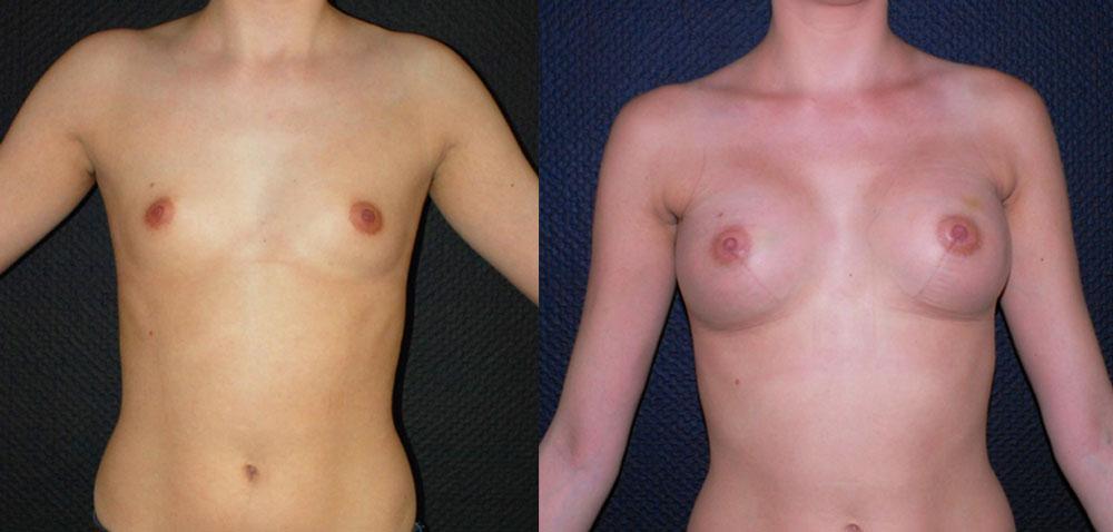 Implant mammaire anatomique 300 cc haute projection résultat FACE