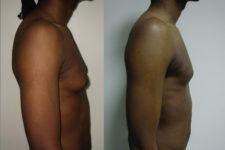 Gynécomastie avant / après. Vue de profil