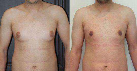 Adipomastie par liposuccion exclusive