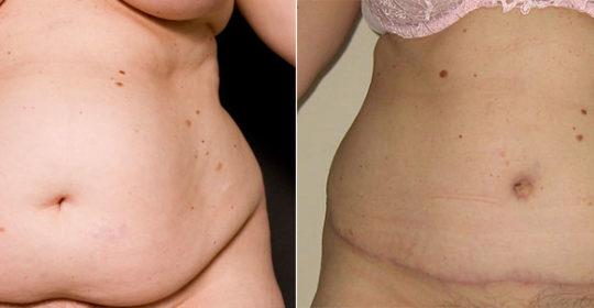 Plastie Abdominale après grossesse : de face