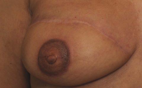 Reconstruction de l'aréole après tatouage