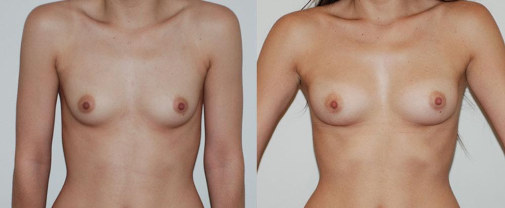 Lipofilling des seins, augmentation mammaire sans implant. Vue de face