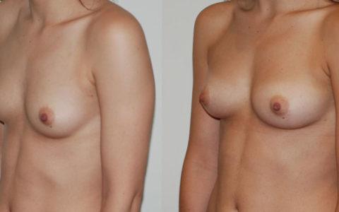 Lipofilling des seins, augmentation mammaire sans implant. Vue de profil