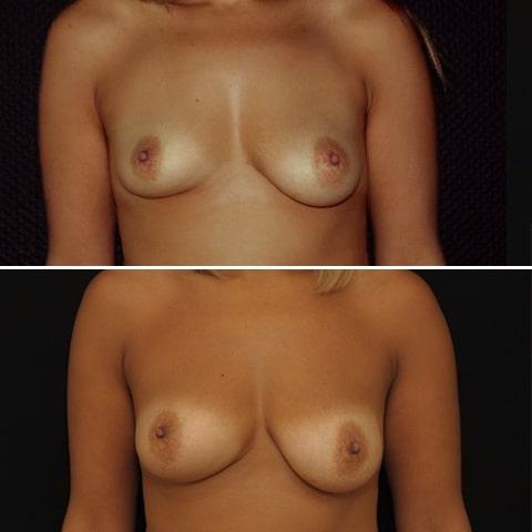 Lipofilling des seins avec correction d'asymétrie. Photo de face