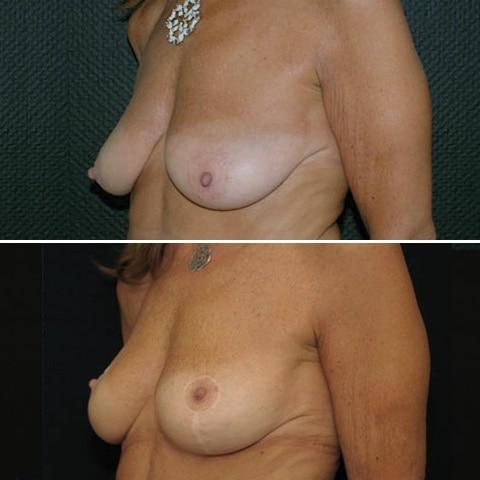 Cure de ptose mammaire, vue de 3/4, avant et après