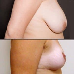 Réduction mammaire de 300 grammes. Vue de profil