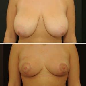 Plastie Mammaire de Réduction, vue de face