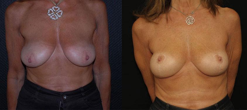 Photos avant et après une cure de ptose mammaire