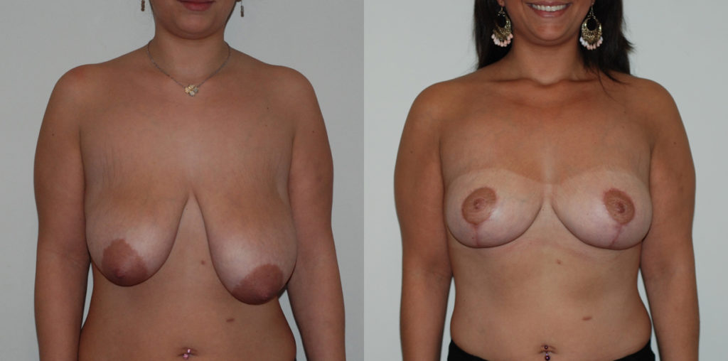 Cure de ptose et réduction mammaire, vue de face