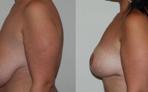 Cure de ptose et réduction mammaire, vue de profil