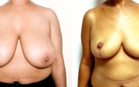 Réduction mammaire de 800 grammes. Vue de face